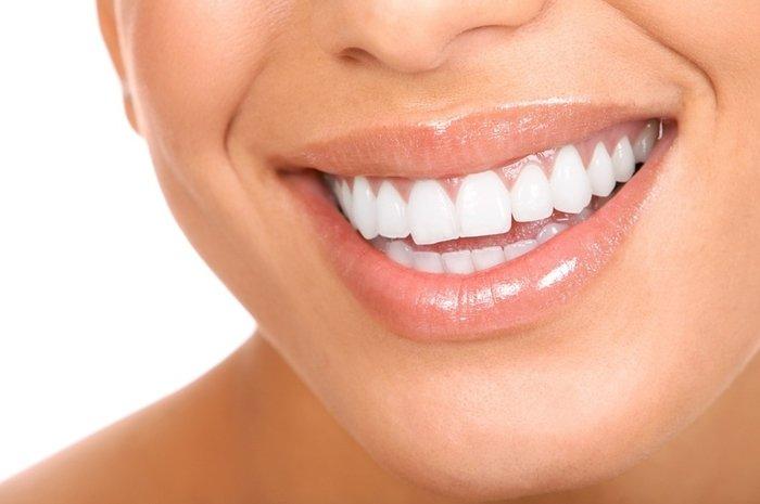 Белоснежная улыбка, snow-white smile, Білосніжна посмішка