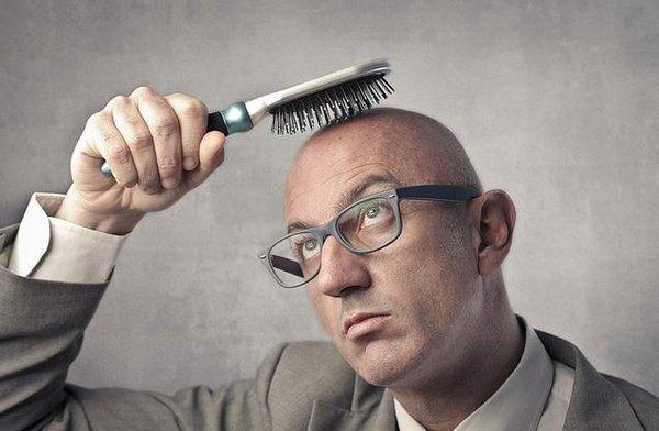 Выпадение волос, Hair loss, Випадіння волосся
